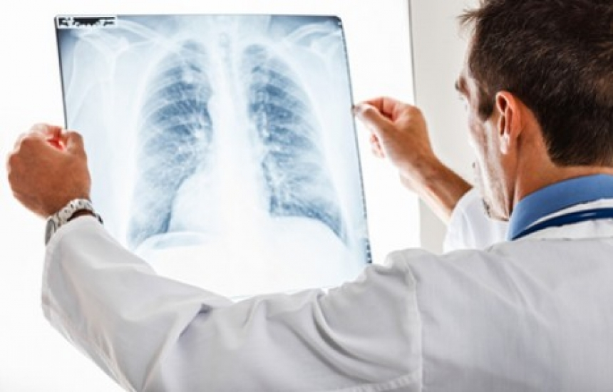 Продължава скринингът на бял дроб