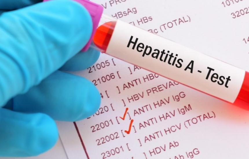 Ръст на вирусните хепатити през есента