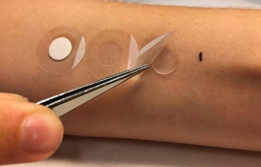 Учени разработват пластир за диагностика на кожен рак