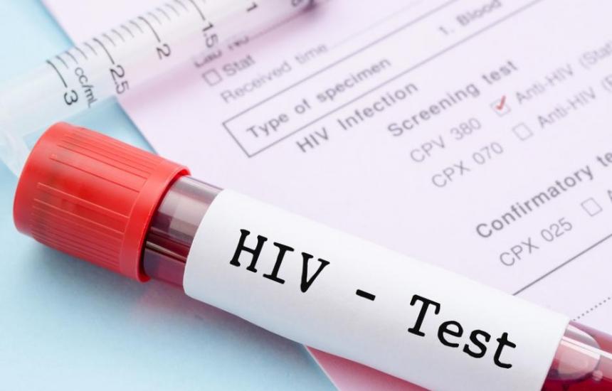 97% от хората у нас с ХИВ са на терапия