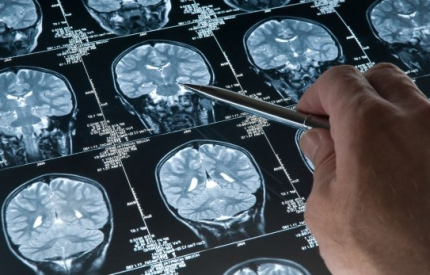 Мозъчните тумори при децата са особено рискови