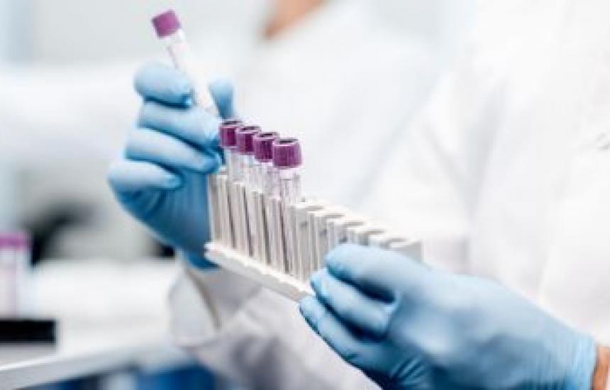 Изследват 30 антивирусни лекарства