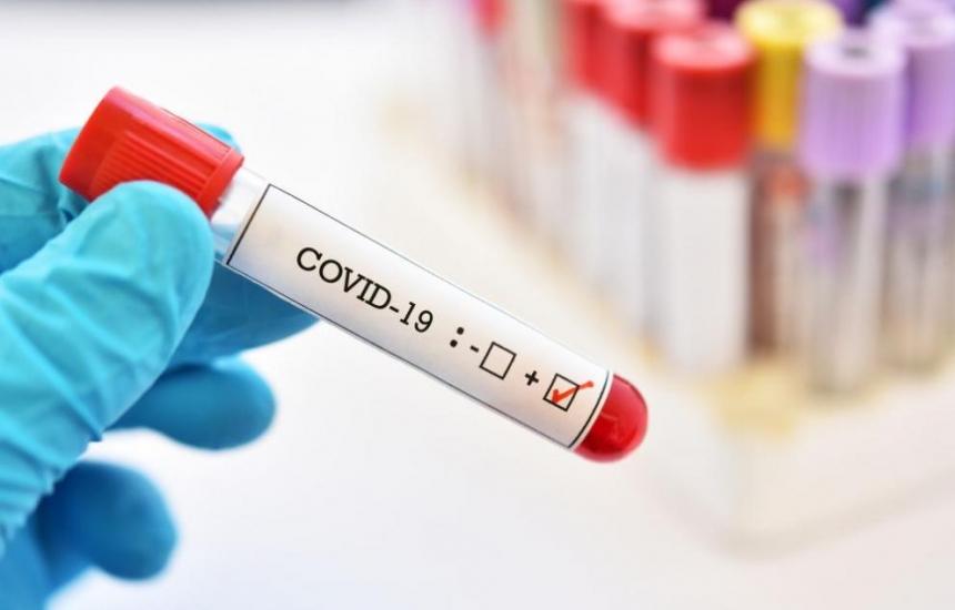 577 случая на КОВИД-19, 23 смъртни