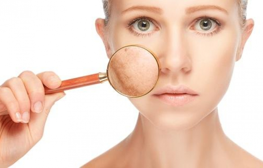 Безплатни прегледи за пигментации по лицето