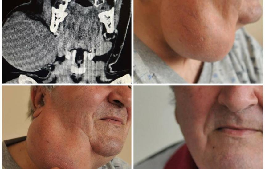 Отстраниха 20-годишен тумор от шията на мъж