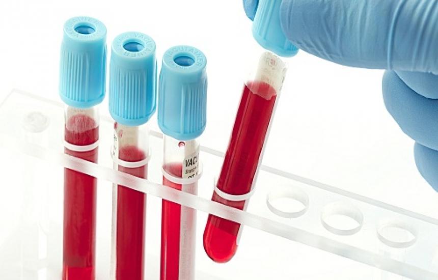 МЗ търси шеф и на кръвния център