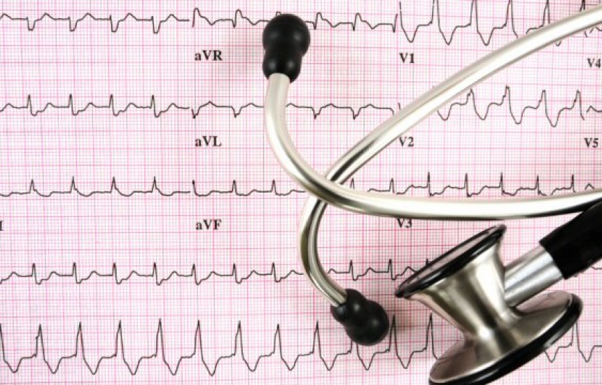Без кардиология в ловешката болница