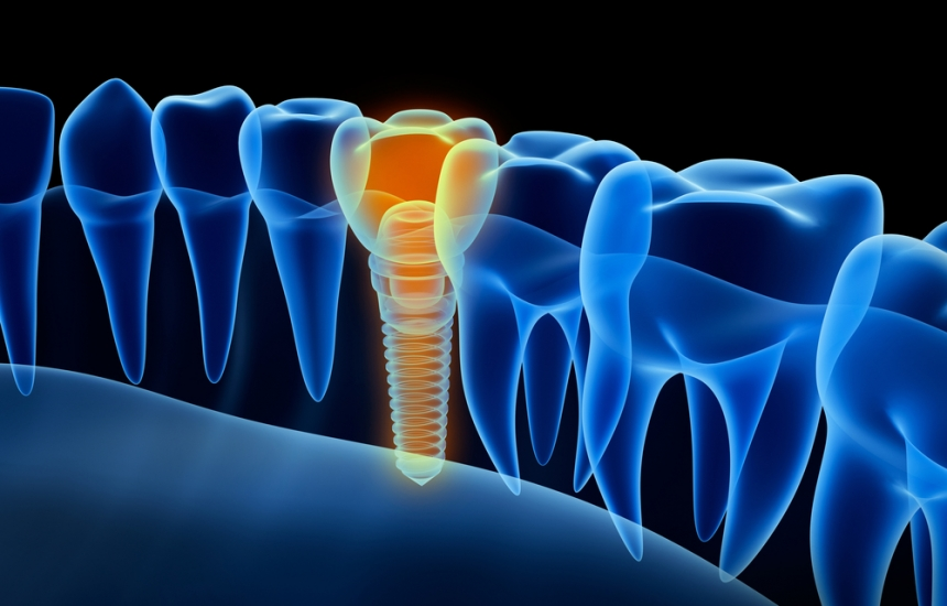 """Поставят зъбни импланти в """"Св. Анна"""""""