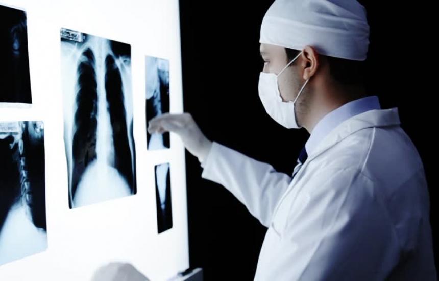 600 нови случаи на белодробен рак годишно