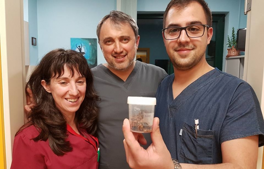 Извадиха без операция 10-сантиметров камък от жена