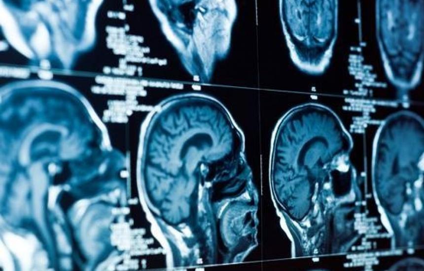 От 160 до 450 операции в неврохирургията
