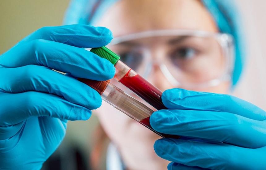 Безплатни тестове за СПИН и хепатит