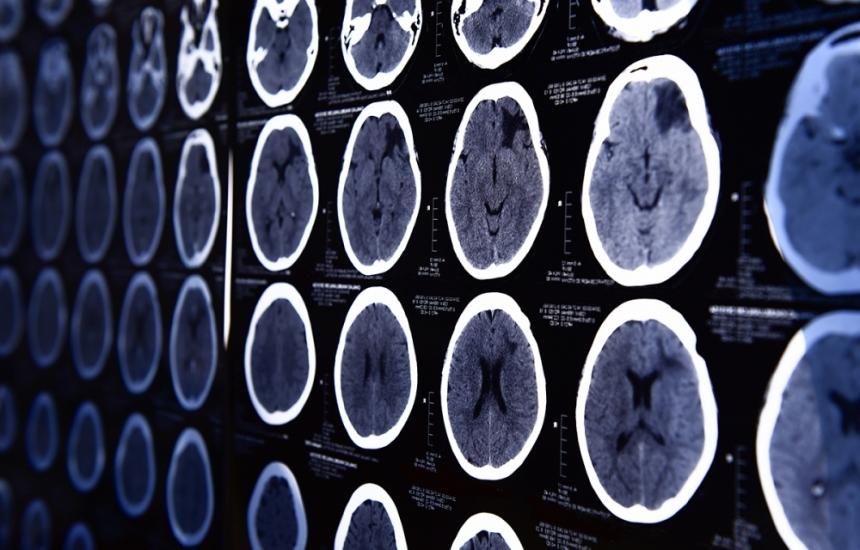 Неврохирургичните операции през 2018 г.