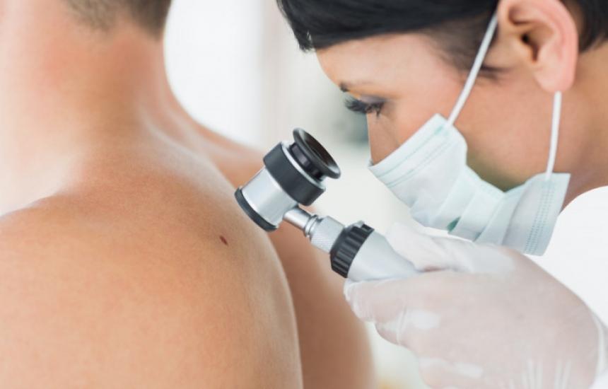 500 годишно боледуват от меланом у нас