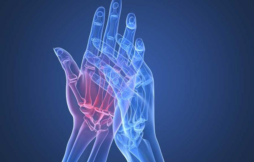 Над 100 хиляди у нас страдат от артрит