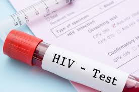 Намаляват смъртните случаи от СПИН