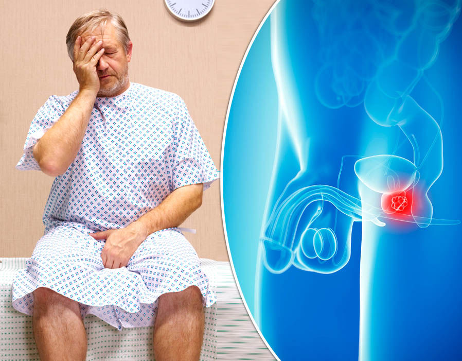 Ракът на простатата поразява и без симптоми