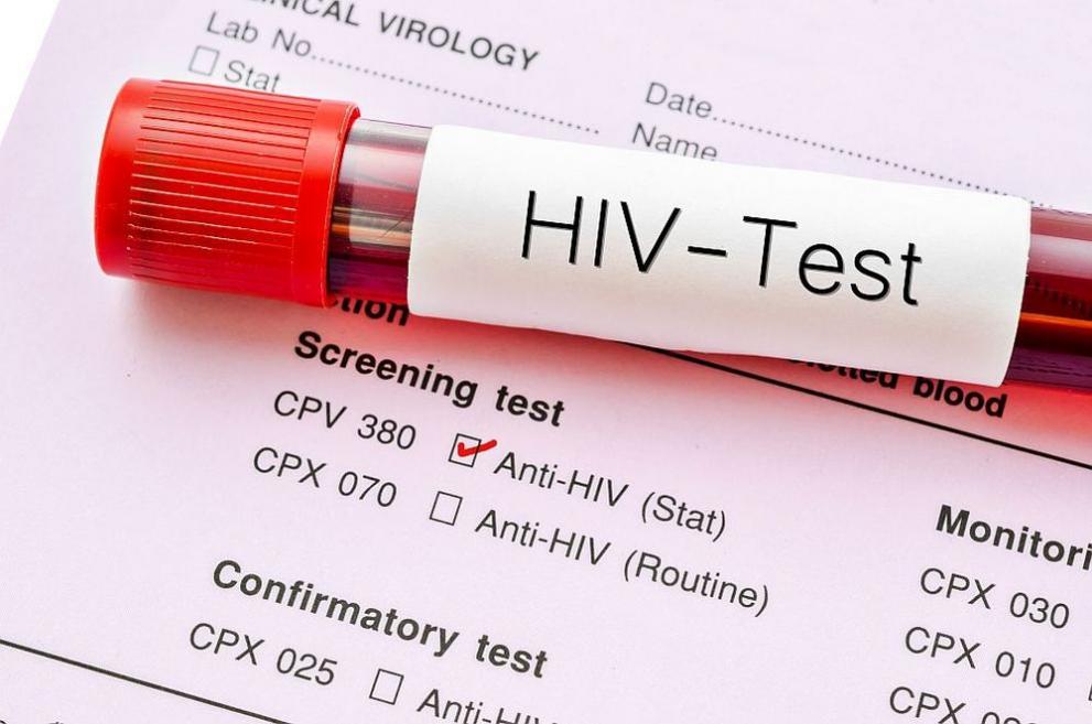 3050 са носителите на ХИВ у нас