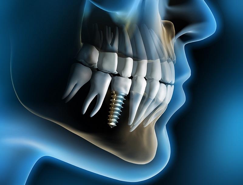 Един зъб изпили ли се, след време загива