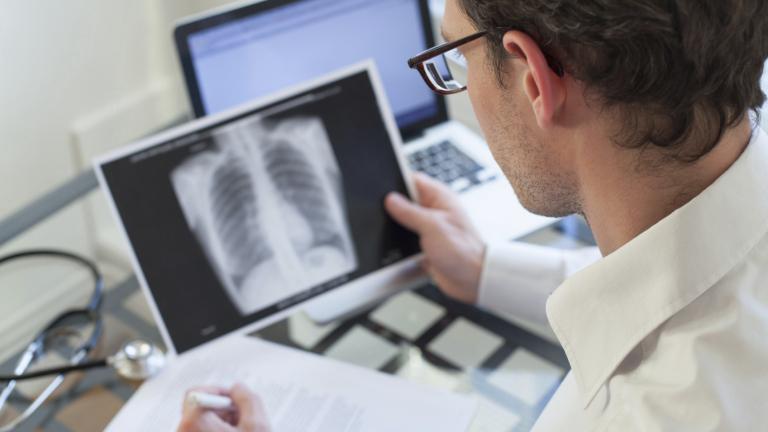 Откриваме в късен стадий рака на белия дроб