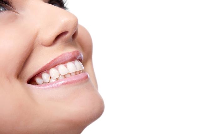 Диамантена усмивка